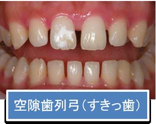 空隙歯列弓(すきっ歯)